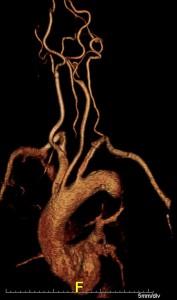 3d aortenbogen