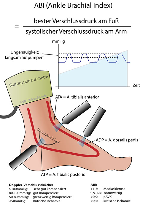 knöchel arm index messen