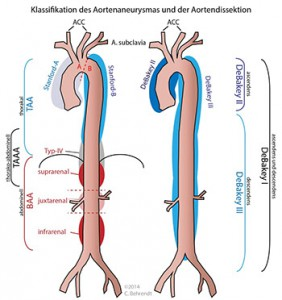 aortaklassifikation