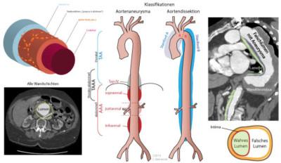Abbildung: Unterschied zwischen Aortenaneurysma (links) und Aortendissektion (rechts).