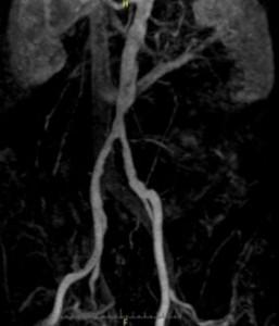 aortenstenose infrarenal