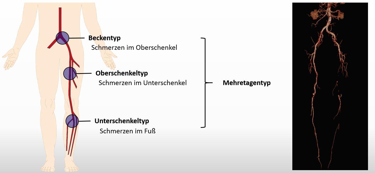 Periphere Verschlusskrankheit – WPGefaessmanual2016