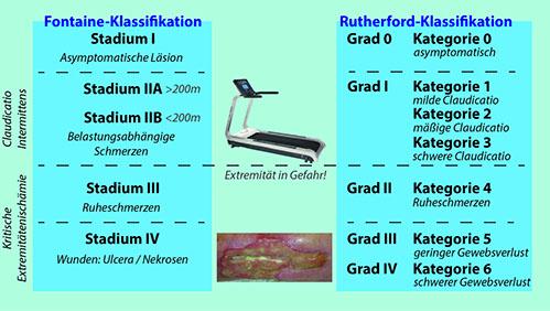 Abbildung: Klassifikationen der pAVK (links Fontaine, rechts ...