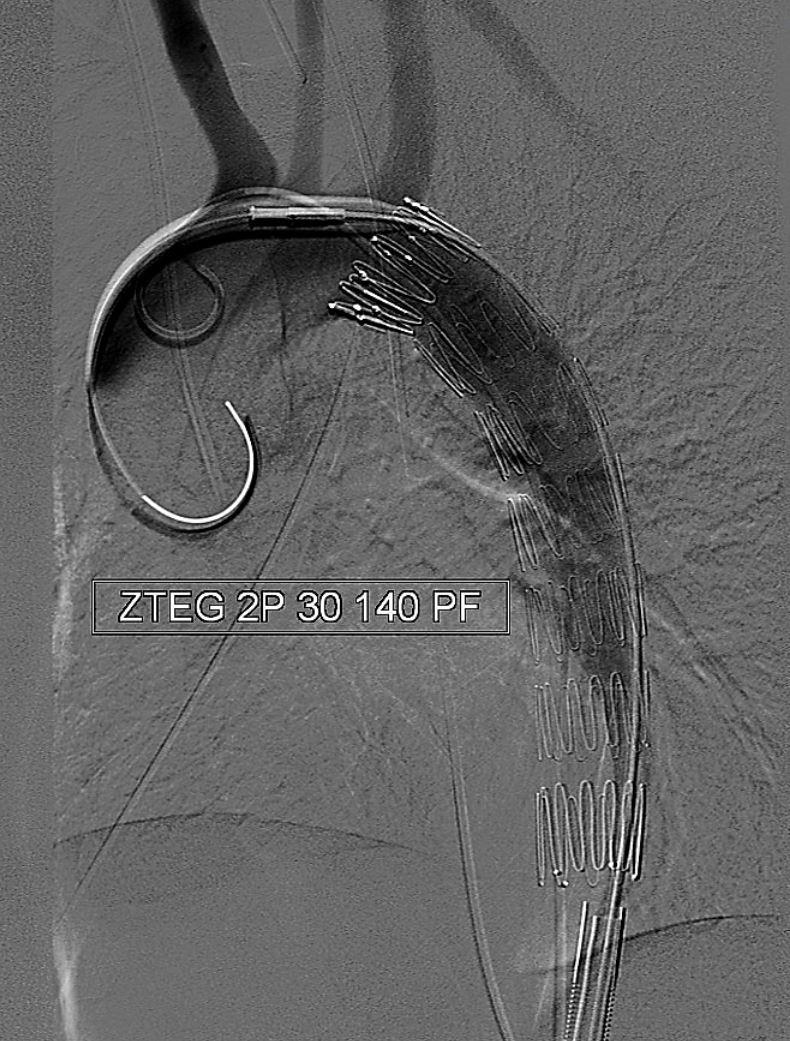 aortendissektion typ a langzeitprognose