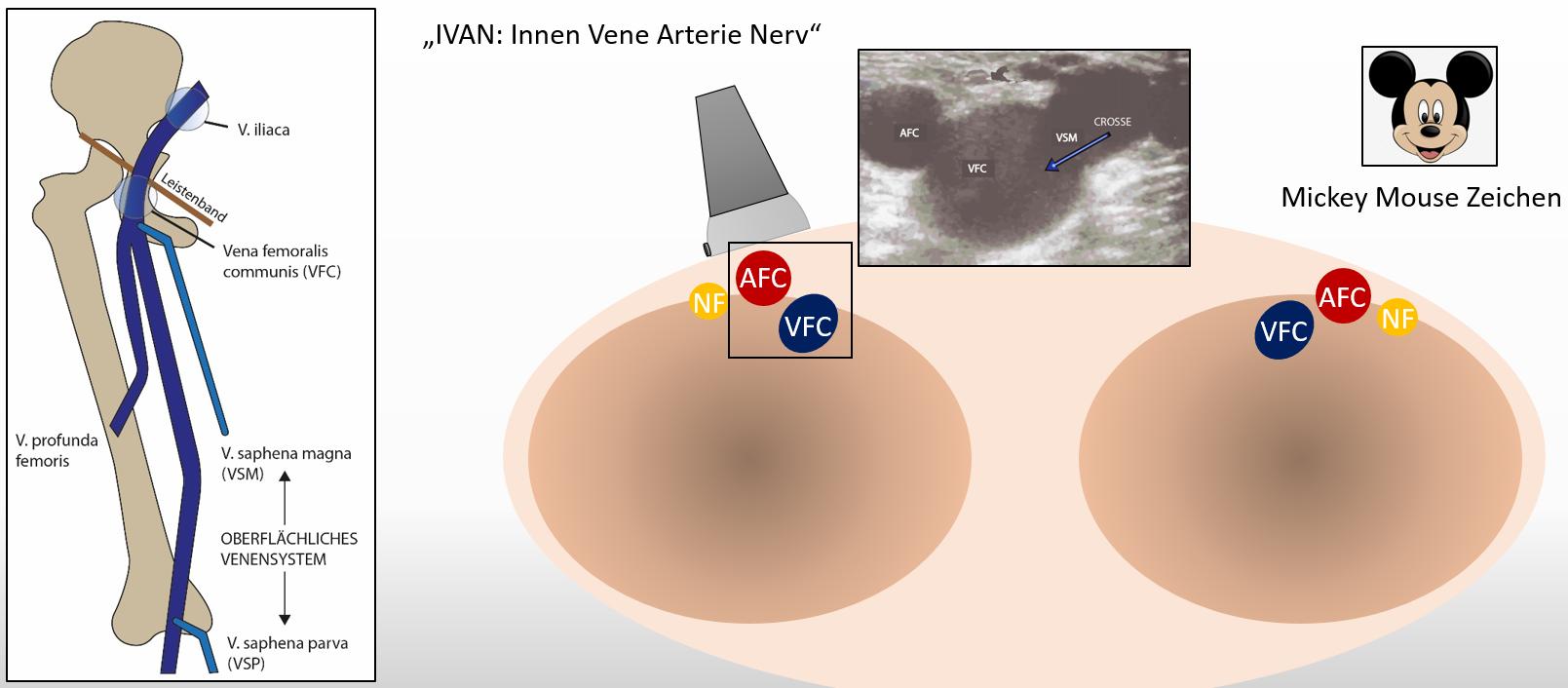 Venenthrombose – WPGefaessmanual2016