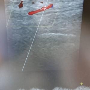 Abbildung: Postokklusives entschleunigtes monophasisches Flussprofil der distalen Unterschenkelarterie (hier: A. tibialis anterior).