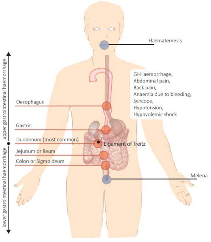 Thorakales Aortenaneurysma – WPGefaessmanual2016